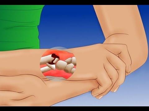 Перелом кости руки -