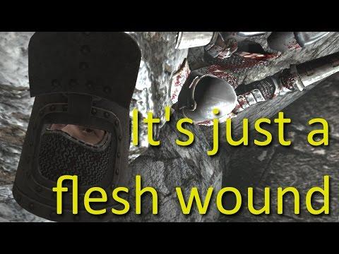 It's just a flesh wound - Chivalry Medieval Warfare (Black Knight Mod) |