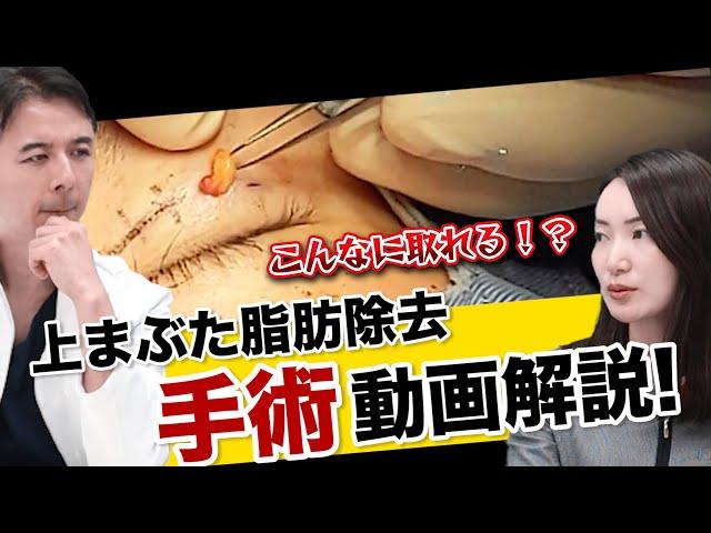 【上まぶたの脂肪除去】二重ラインがハッキリに!?手術動画を見ながら解説!