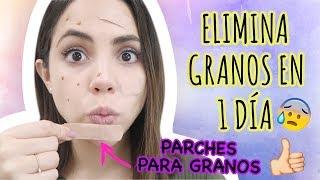 CÓMO QUITAR GRANOS EN 1 DÍA | What The Chic thumbnail