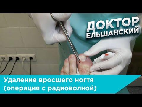 Удаление вросшего ногтя (операция с радиоволной)