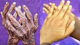 HOW I REMOVE WRINKLES ON MY HANDS & FINGER | CLEAR HAND ROUGHNESS AND DRYNESS