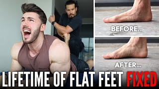 FIXING A LIFETIME OF FLAT FEET | Extremely Painful but Worth it...