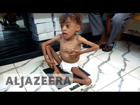 UN: Yemen faces world's 'largest humanitarian crisis'