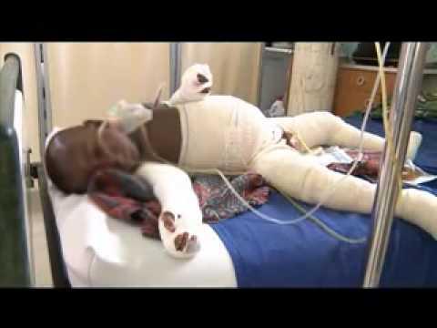 accidents domestiques br lure d 39 enfant les plus r currents en c te d 39 ivoire youtube. Black Bedroom Furniture Sets. Home Design Ideas
