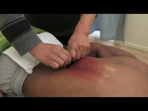 Scraping Massage (Gua sha)