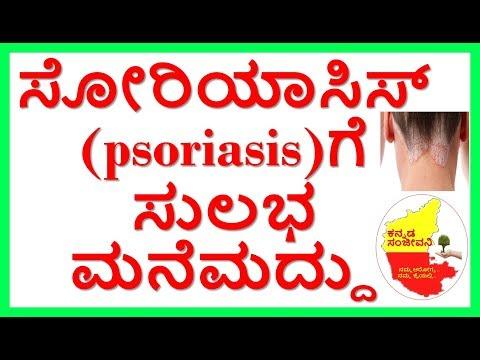 Best Home Remedies for Psoriasis ..Kannada Sanjeevani..