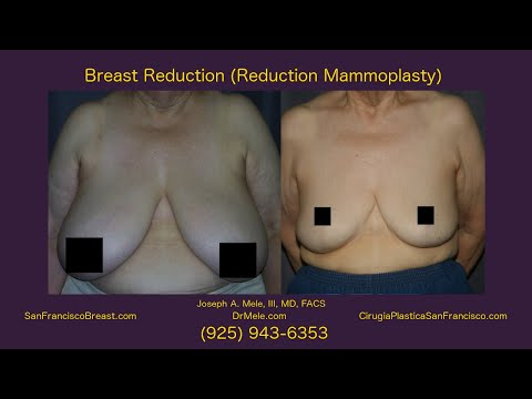 SF Bay Area Breast Reduction for Women
