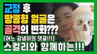 강냉이 댓글 교정 후 땅콩 얼굴...??? 교정부작용?