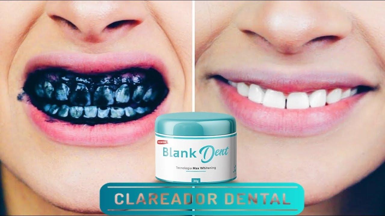 Blank Dent Clareador Dental Funciona Mesmo Depoimento De Quem Usou
