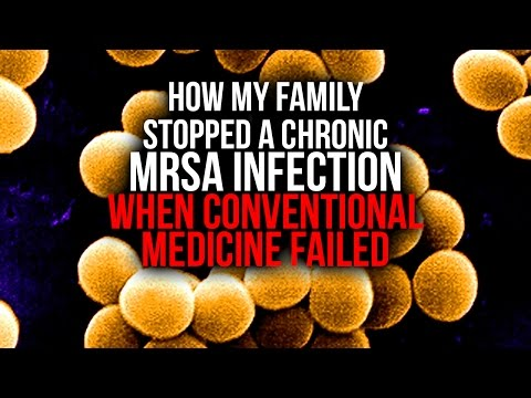 How my family Stopped a Chronic MRSA Infection When Conventional Medicine Failed