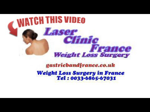 Weight Loss Surgery in France Testimonials