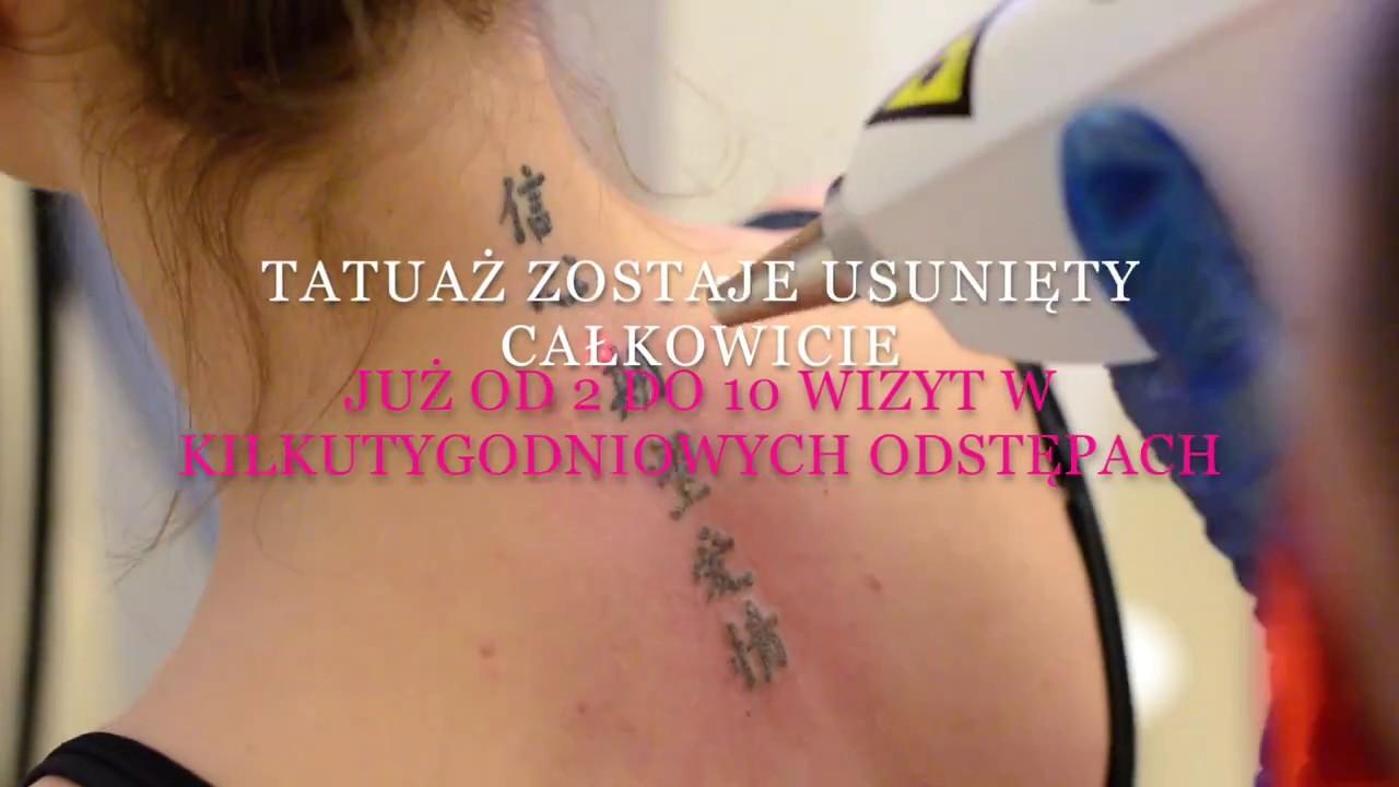Usuwanie Tatuaży Makijażu Permanentnego Lublin Laser Look