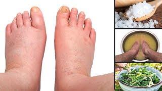 5 natürliche Hausmittel gegen geschwollene Füße!
