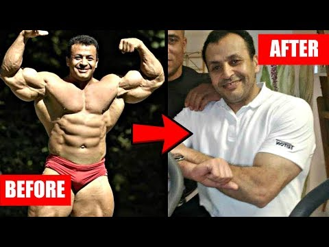 What Happens When Bodybuilders Retire?