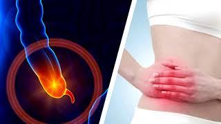 Découvrez les symptômes de l'appendicite.