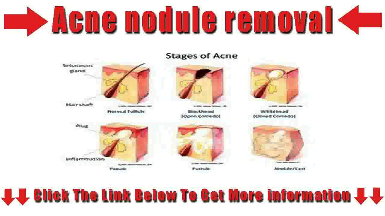 acne nodule removal - youtube pimple pop diagram 2000 coleman pop up camper wiring diagram
