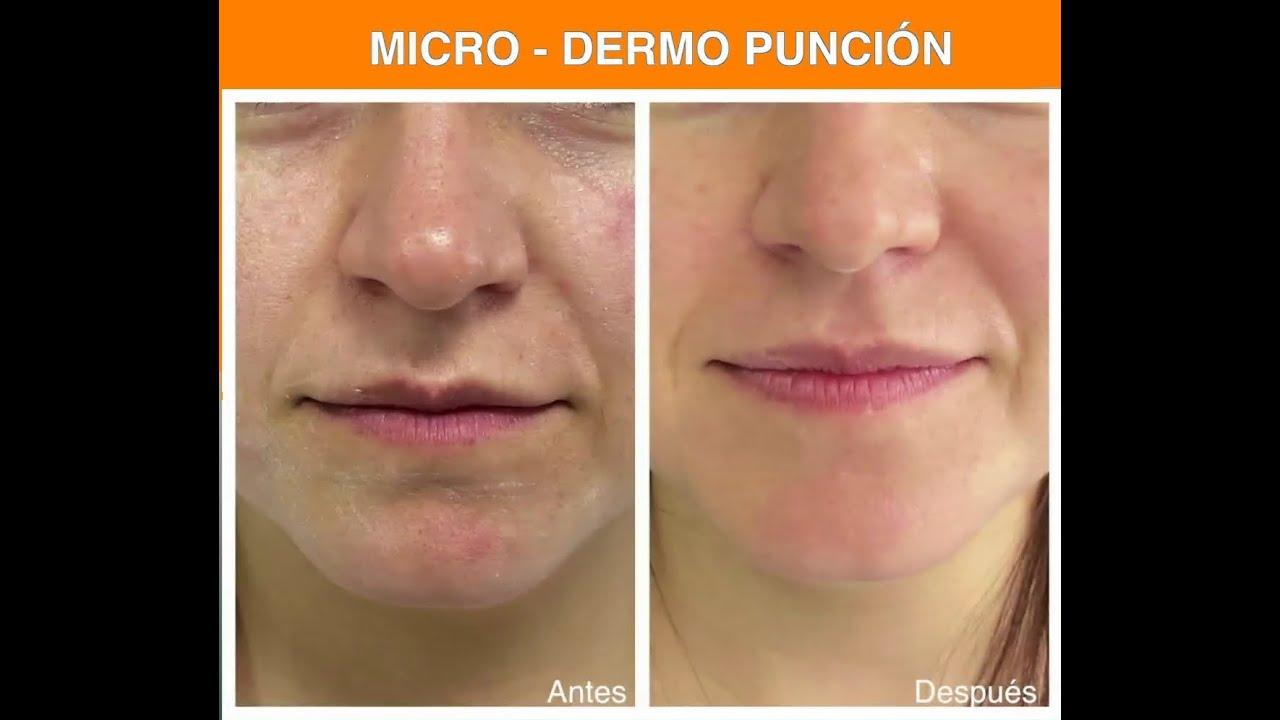 Dermapen Rejuvenecimiento sin cirugia y Borrador de Acné | Microdermo Punción (Bogotá)