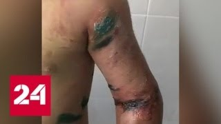 Тетя избитой девочки: травмы ребенок получил при падении в яму - Россия 24