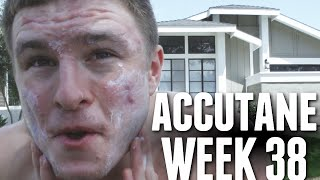 Accutane Week 38 - All Day in the Sun in Huntington, Acne Scars and Red Marks!