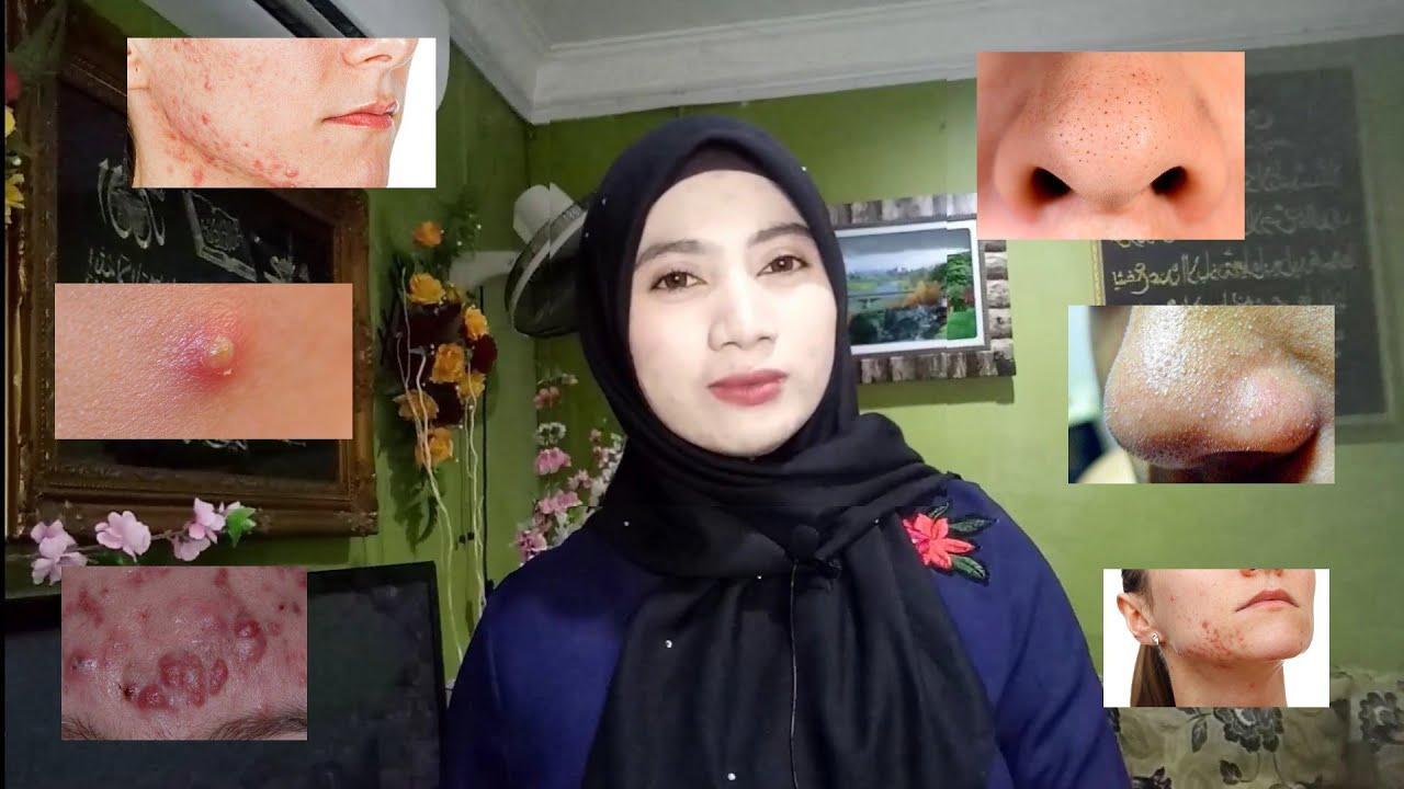 Jenis Jenis Jerawat ! (Malaysia) #2 - YouTube