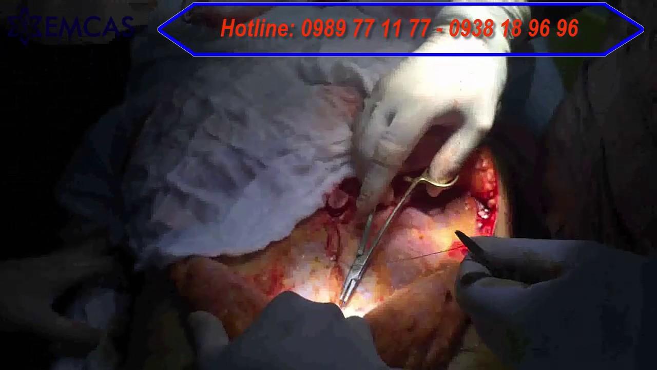✯ EMCAS ✯ Cận cảnh quá trình cắt mỡ thừa vùng bụng