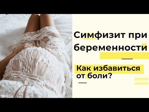 Симфизит во время беременности и после родов