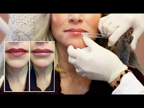 30 Units Of Botox + Lip Filler From Doctor Cynthia Cote