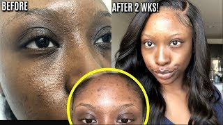 HOW TO GET RID OF ACNE SCARS, PIMPLES BLEMISHES FAST 100% RESULTS Skincare ROUTINE!