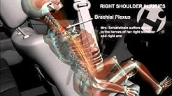 Injuries from Rear End Collision