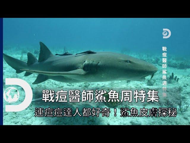 防止細菌滋生的超神奇皮膚!?痘痘達人體驗鯊魚的超能力《2021鯊魚週:戰痘醫師鯊魚週特集》