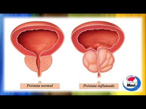 remedios caseros para tratar el agrandamiento de la próstata