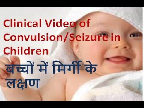 clinical video of convulsion/seizure in children