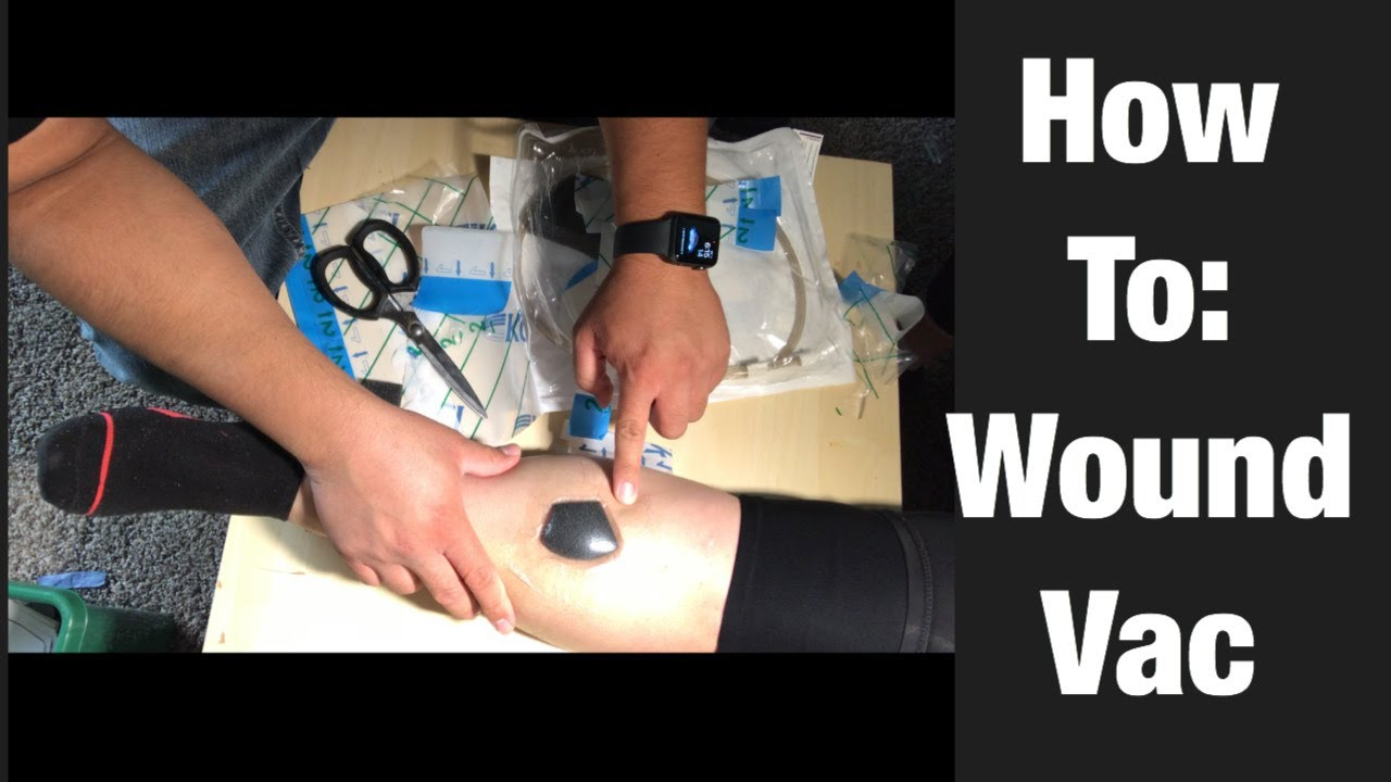 Download How To Perform Wound Vac Dressing Change