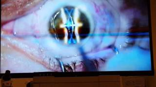 2016 Lasik eye surgery