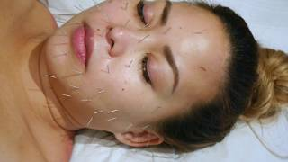 Cosmetic Acupuncture with Jacina a London based acupuncturist