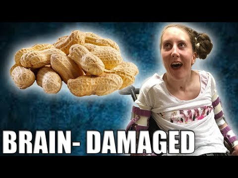 dating someone with nut allergies