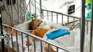 Institut Amosova pul Angiografiya (qo'llab-quvvatlash)ta'mirlash uchun to'playdi