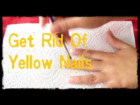 DIY: Get Rid of Your Yellow Nails Fast:D - YouTube