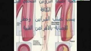 Repeat youtube video معجزة زيت الزيتون