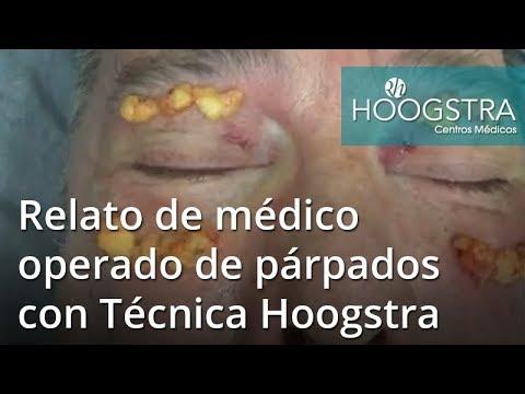 Relato de médico operado de párpados con Técnica Hoogstra (18171)