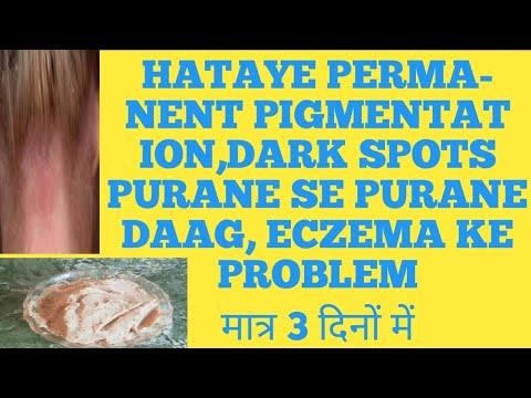 Pigmentation,dark spots, eczema इन सब को दूर करें मात्र 3 दिनों में 👍 by Dr Shalini
