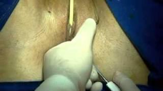 Repeat youtube video Cirugía Incontinencia urinaria. Info: www.drcapmartin.com o en Bogotá al 2880407