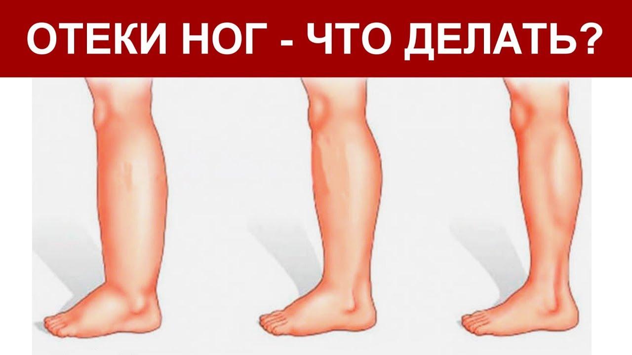 почему отказывают ноги причины