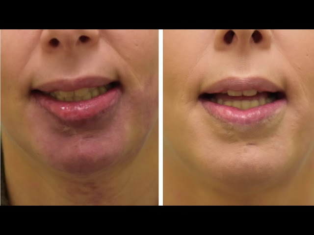 Dallas Lip Reduction/Correction for Hemangioma