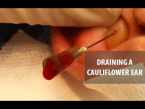Draining A Cauliflower Ear | Dr. Derm