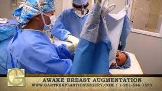 Breast Augmentation Awake Procedure Awake Breast Implants Awake Breast Enhancement new jersey