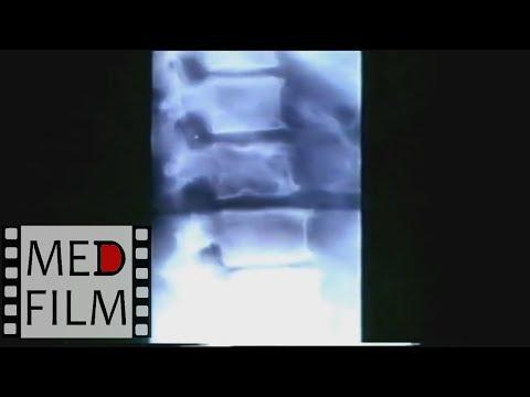 Как выглядит рентген