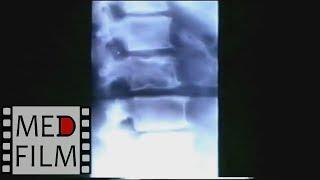 Остеохондроз. Рентген позвоночника © Roentgen of the spine with osteochondrosis