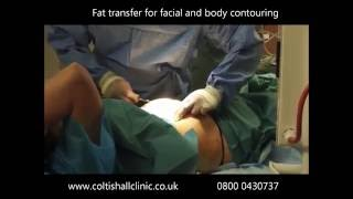 Fat transfer for breast augmentation. Norwich UK Thumbnail